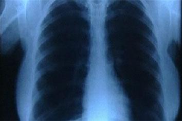 [Image: chest-x-ray-slide.jpg]