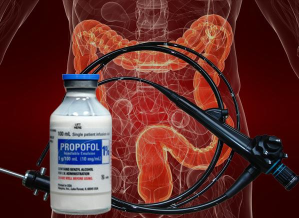 Deep Sedation For Colonoscopy Might Not Be Safe Consumer